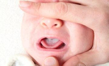 4 bệnh về răng thường gặp ở trẻ mà bạn cần biết