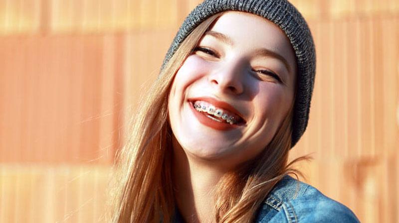 Những điều cần biết về niềng răng mắc cài thường và niềng răng mắc cài tự buộc