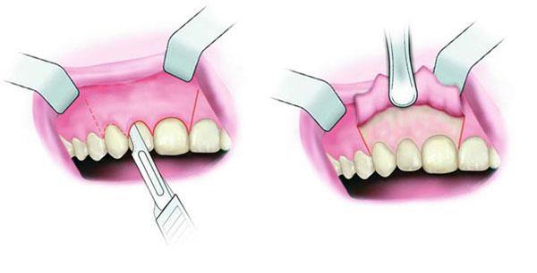 Phẫu Thuật Cắt Chóp Răng