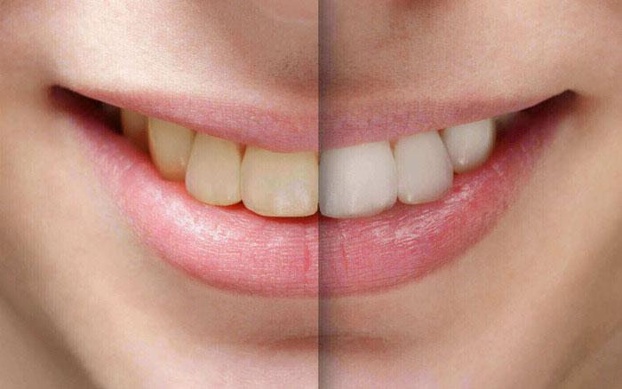 Tẩy Trắng Răng, Điều Trị Răng Nhiễm Màu