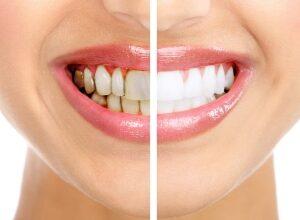 Nhiễm kháng sinh thì có thể tẩy trắng răng được hay không ?