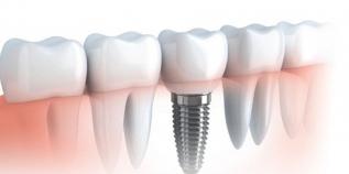 Bạn nên đi cấy ghép răng khi nào?