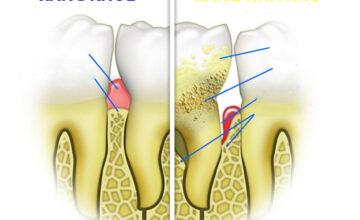 Bệnh nha chu - không đơn thuần là sức khỏe răng miệng