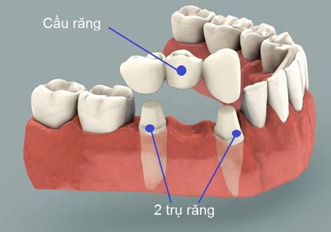 Ưu - Nhược điểm của việc làm cầu răng