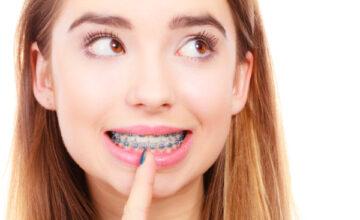 Niềng răng mắc cài có đau không?