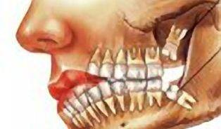 Răng khôn: khôn ngoan hay phá bĩnh?