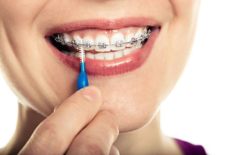Vì sao cần điều trị viêm nha chu và sâu răng trước khi niềng răng?