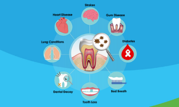 The correlation between oral health and overall health