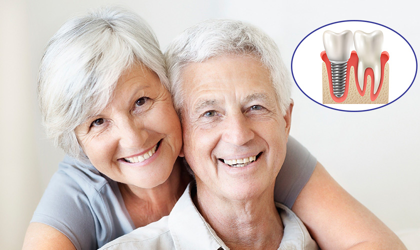 Ai Mất Răng Cũng Có Thể Cấy Ghép Được Răng Implant?