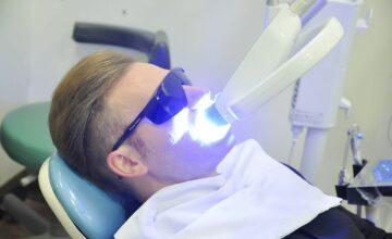 Các phương pháp tẩy trắng răng phổ biến